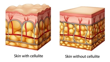 cellulite anatomy